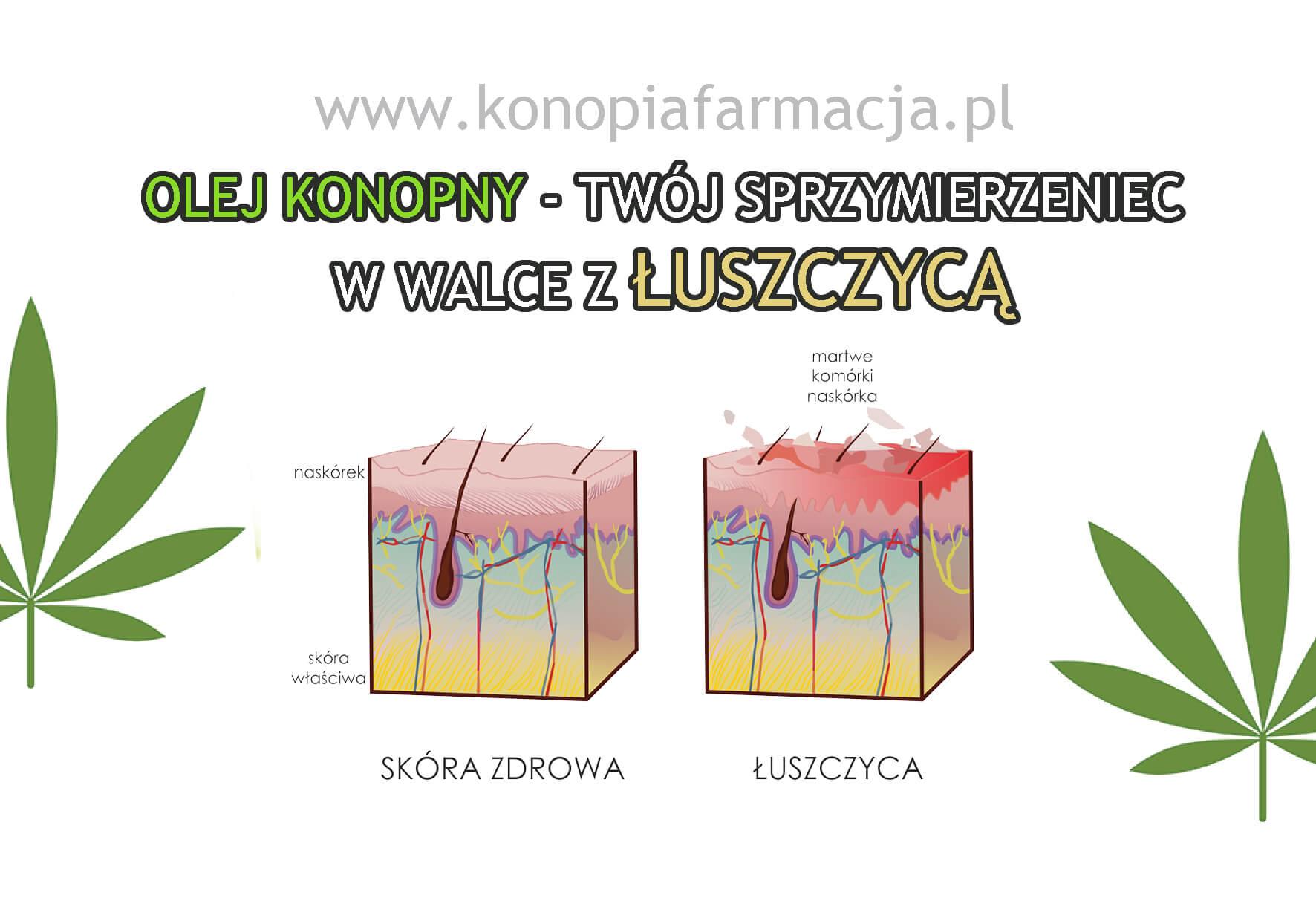 Łuszczyca - domowe leczenie - zestaw olejków konopnych z CBD